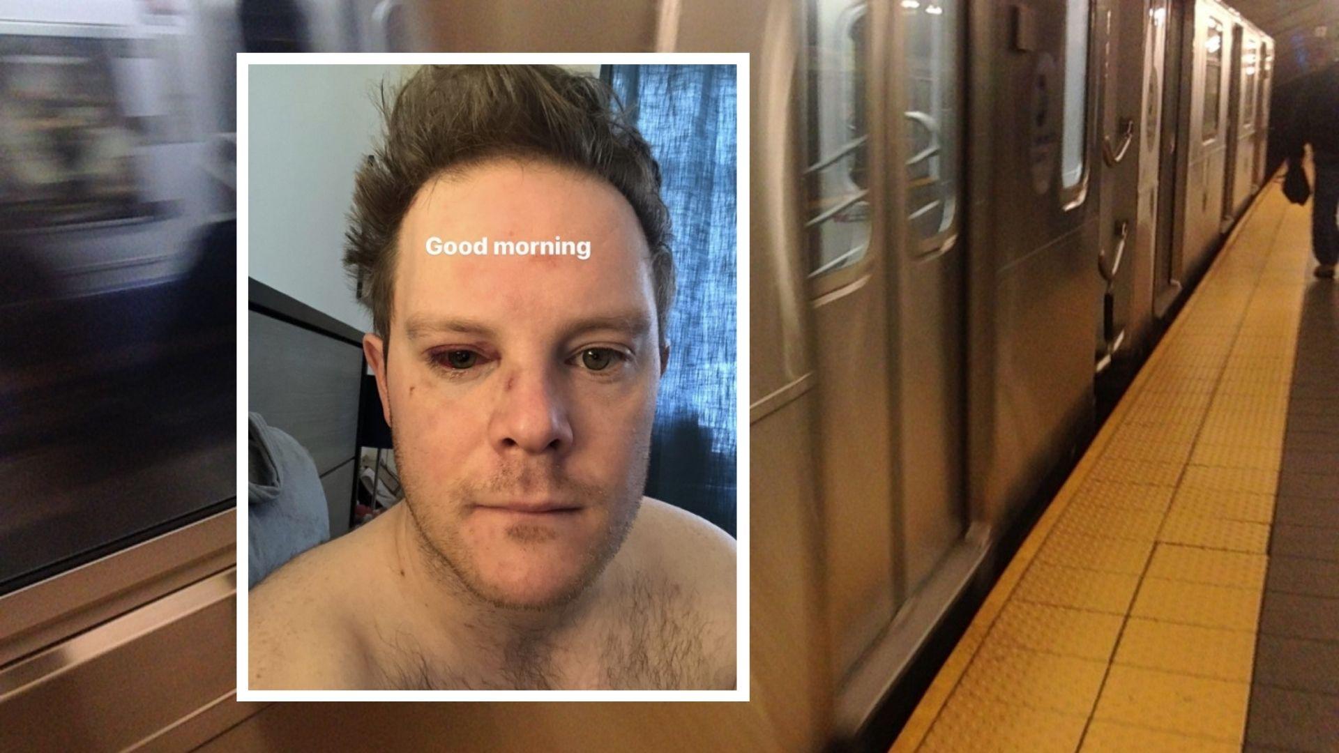 Broadway actor Alex Weisman attacked in Upper West Side subway station
