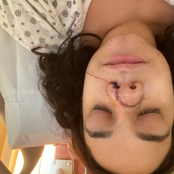 Desteny Cabrera, a manager at a Manhattan clothing store, shows the stitches across her nose and face after a man slashed her while she was at work