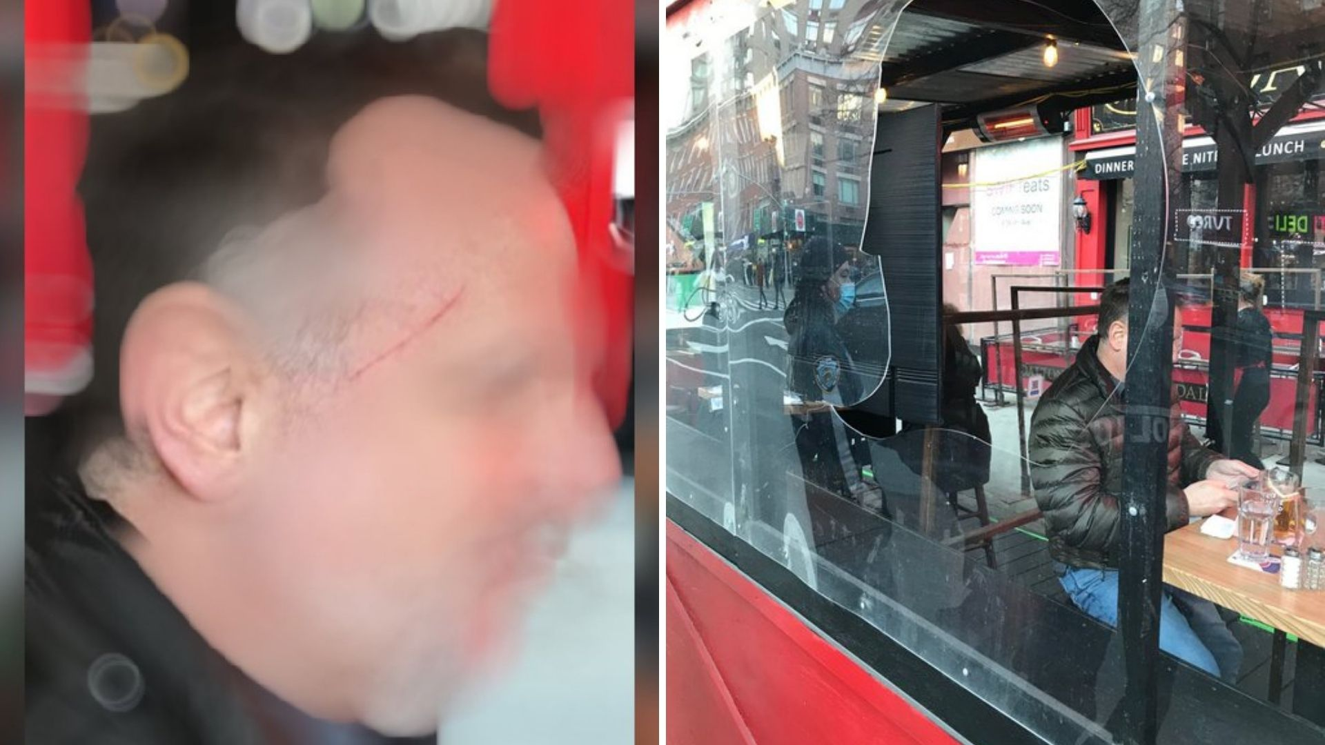 Man with cut on his face after protesters attack Manhattan restaurant