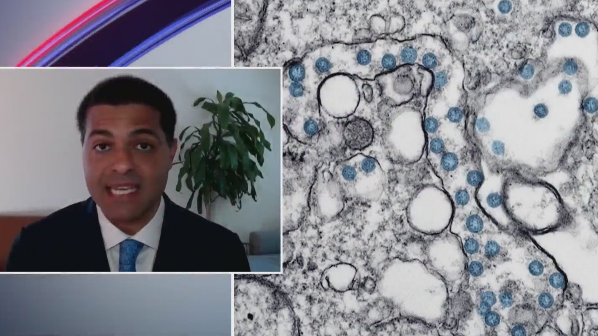 Dr. Shereef Elnahal talks delta COVID variant on PIX11